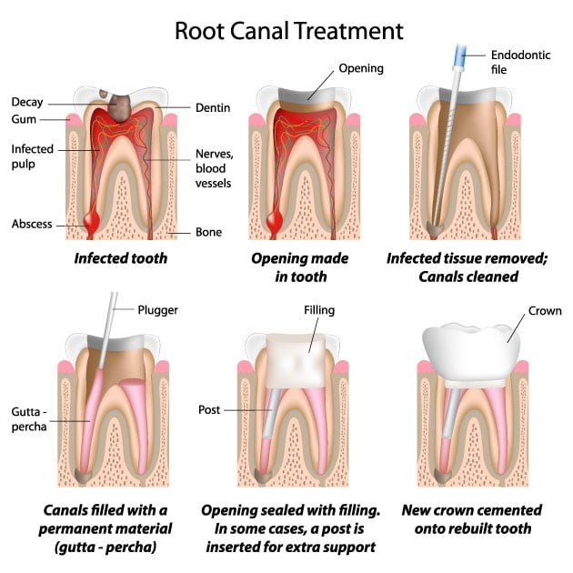 Root Canal Treatment Stages